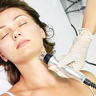 Skin tightening treatment by laser