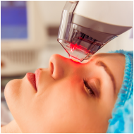 Face lifting by laser
